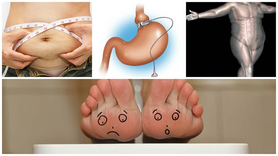Para poder optar a una intervención de cirugía bariátrica el paciente debe pasar por pruebas físicas y psicológicas.