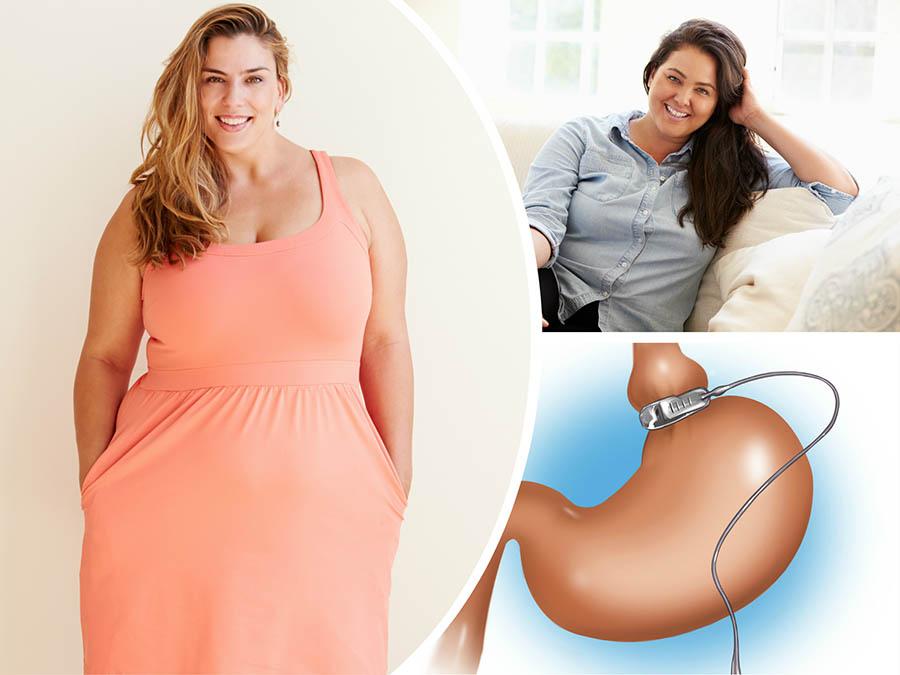 La obesidad en Málaga está relacionada con enfermedades como la diabetes o insuficiencia cardíaca, entre otras.
