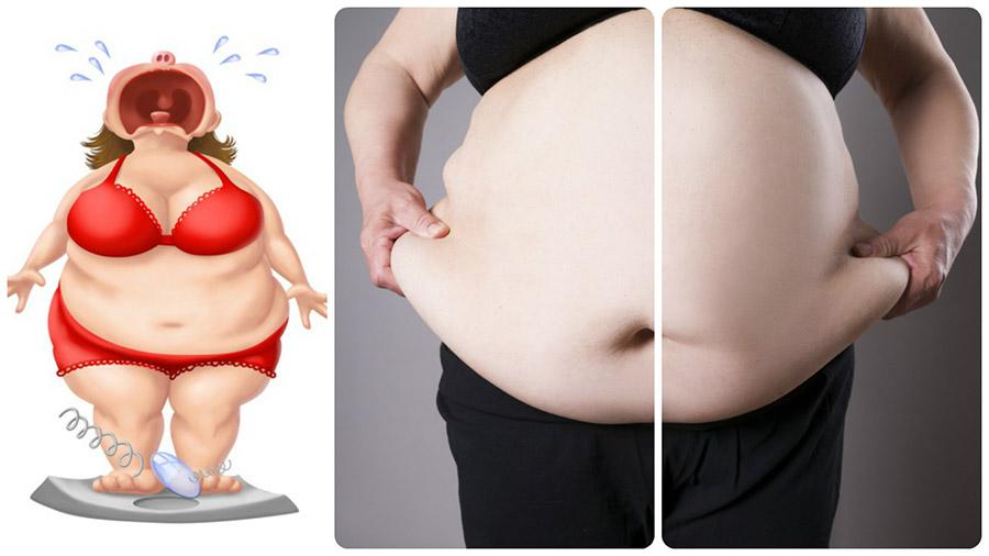 Las personas que tienen obesidad mórbida necesitan la ayuda de una cirugía bariátrica para perder peso.