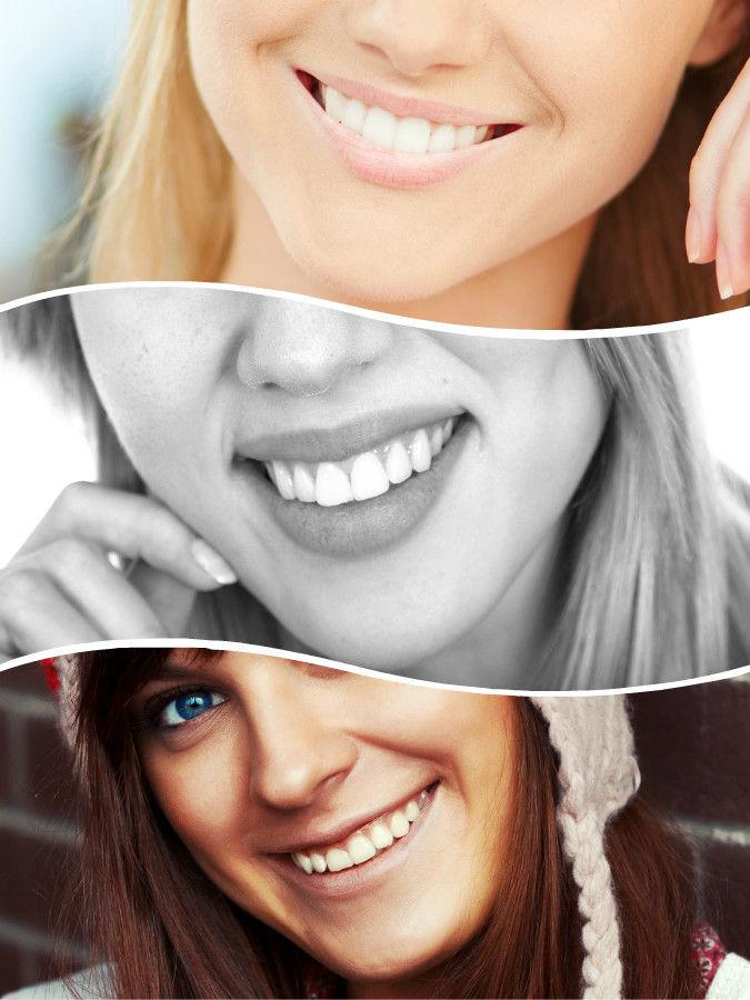 El propósito de realizar una endodoncia en Madrid es salvar un diente dañado.
