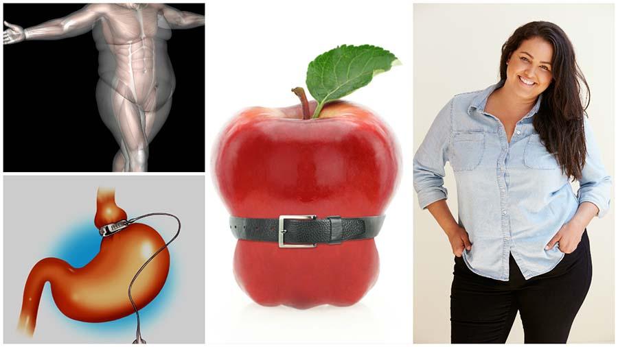 La operación de gastrectomía vertical en Valencia se conoce también con el nombre de tubo gástrico.