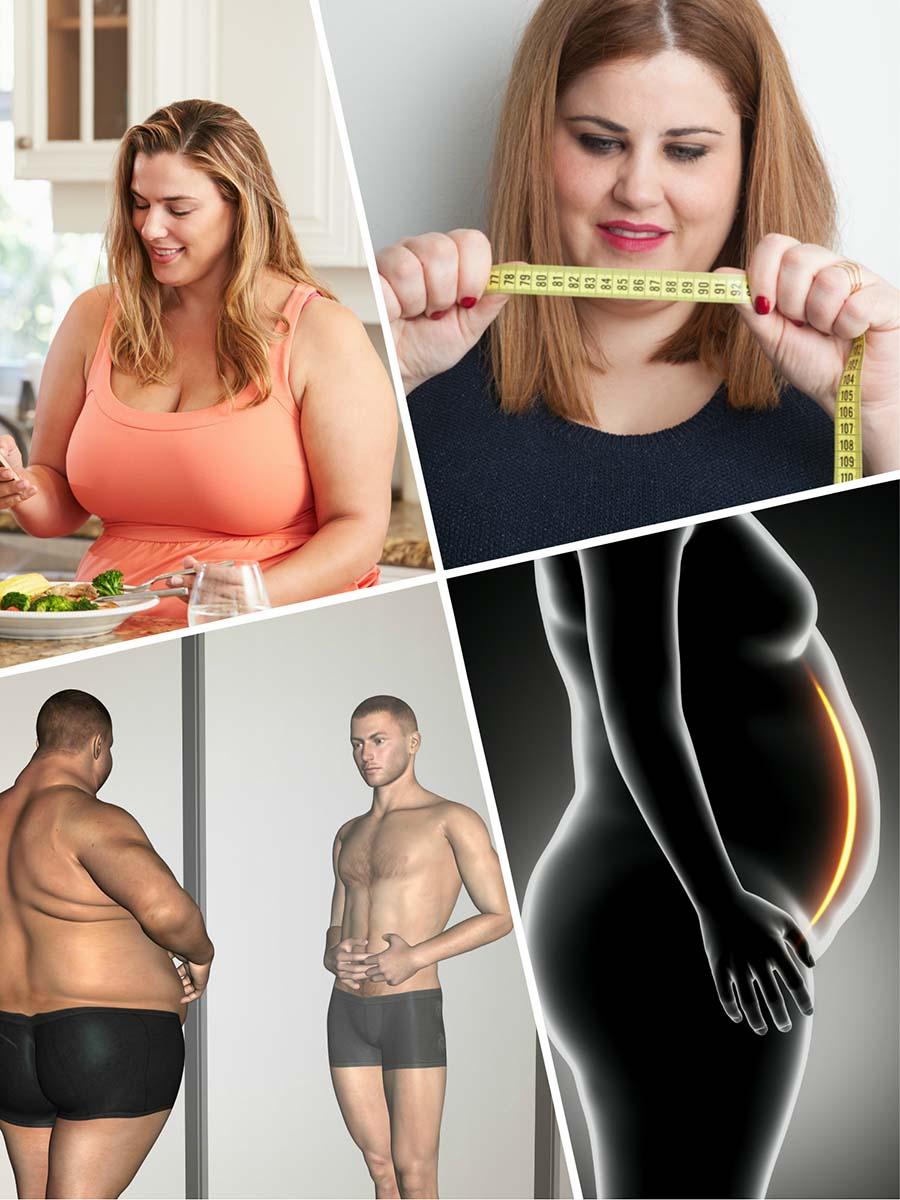 Tras la gastrectomía vertical en Valencia el paciente se sentirá saciado con menos cantidad de comida.
