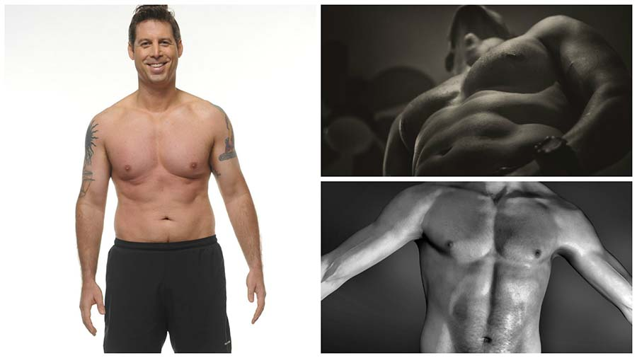 Tras la cirugía de reducción de pecho masculino, el paciente sentirá algunas molestias los primeros días.
