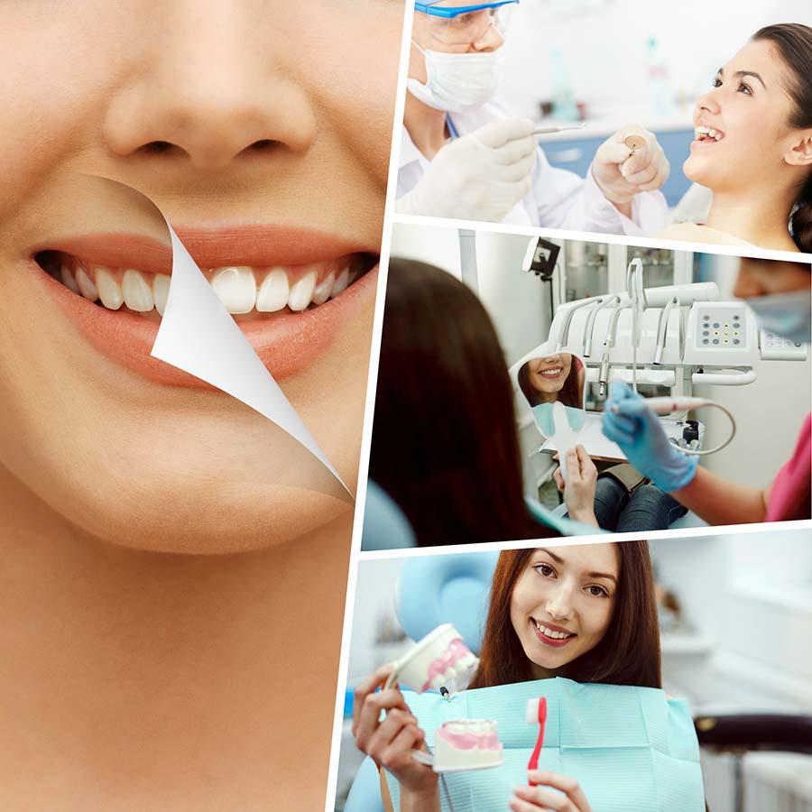 Los implantes dentales en Huelva son permanentes.