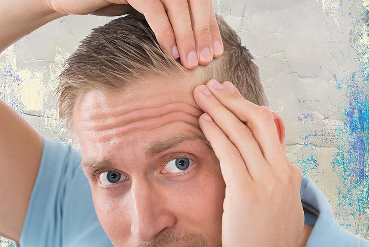 El injerto capilar en Ceuta ofrece resultados permanentes para solucionar la caída del cabello.