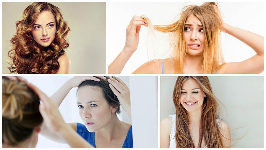 La calvicie en mujeres se suele manifestar en una pérdida de densidad y mayor debilidad del pelo, cuya solución es un injerto capilar en Barcelona.