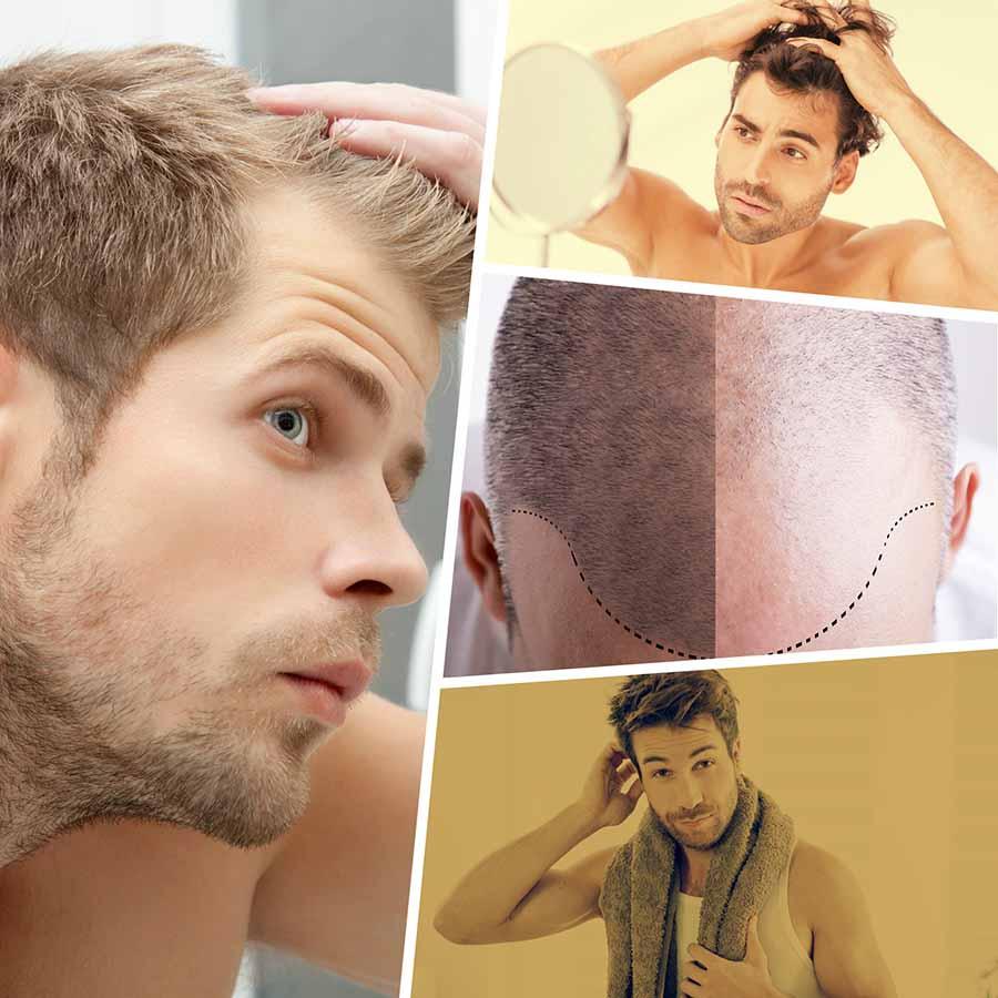 Si se percibe una caída excesiva o temprana del cabello, se recomienda acudir a un especialista para que diagnostique las causas.