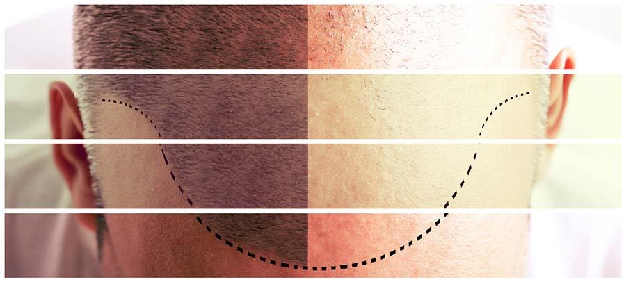 Los resultados del implante capilar en Las Palmas de Gran Canaria se irán observando de forma  progresiva.