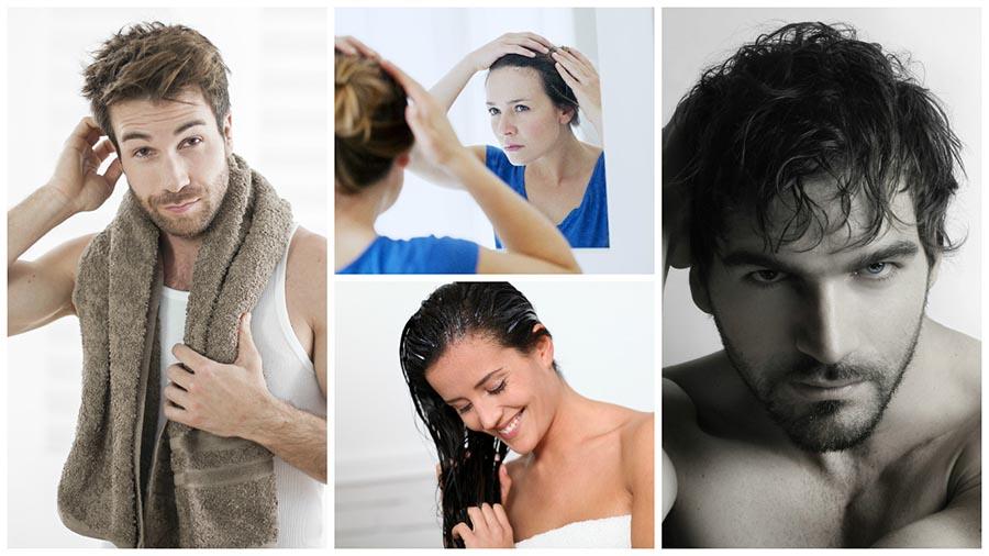 El injerto capilar en Madrid es la solución definitiva contra la alopecia.
