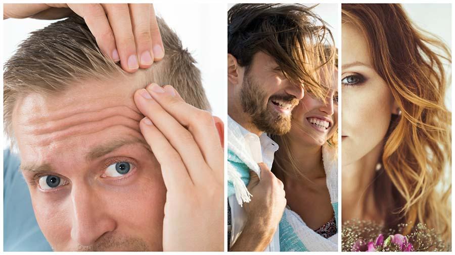 Los resultados del injerto capilar en Málaga son naturales y definitivos, es decir, el pelo injertado no se caerá.