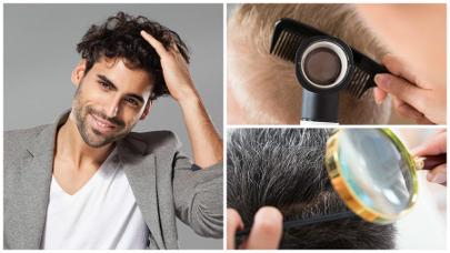 La alopecia afecta especialmente a los hombres, quienes más demandan el injerto capilar en Valencia.