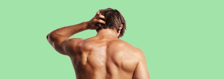 El injerto capilar en Córdoba consiste en extraer unidades foliculares de una parte de la cabeza para implantarlas en la zona con alopecia.
