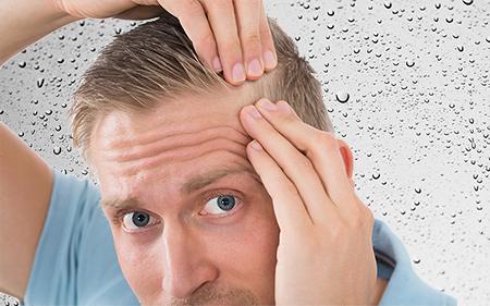 El cirujano examinará cada tipo de pelo para saber qué técnica empleará en el injerto capilar en Murcia.