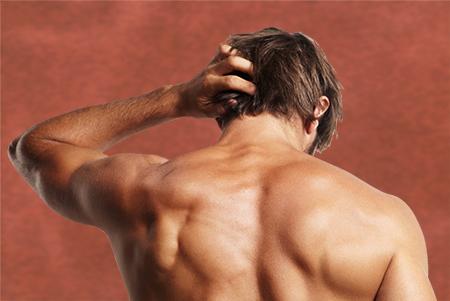 La alopecia de carácter genético afecta especialmente a los hombres.