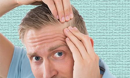 Las causas de la alopecia pueden ser varias, el injerto de pelo en Málaga es una solución en todos los casos.