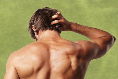 La alopecia cicatricial provoca una pérdida paulatina del cabello.