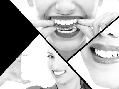 Duración, estética e higiene bucodental son algunas de sus ventajas frente a otros procedimientos de ortodoncia.