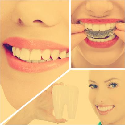 Este tipo de tratamiento dental puede aplicarse tanto en pacientes adolescentes como en adultos.