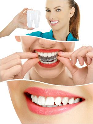 Existen múltiples ventajas del método Invisalign en Sevilla respecto a la ortodoncia metálica tradicional.