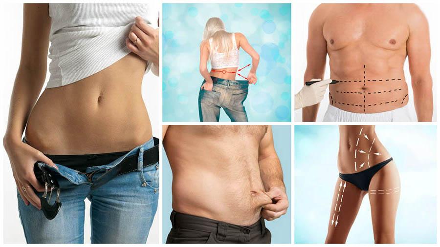 Es importante ser consciente de que la liposucción o lipoescultura en Cádiz no es un tratamiento contra la obesidad.