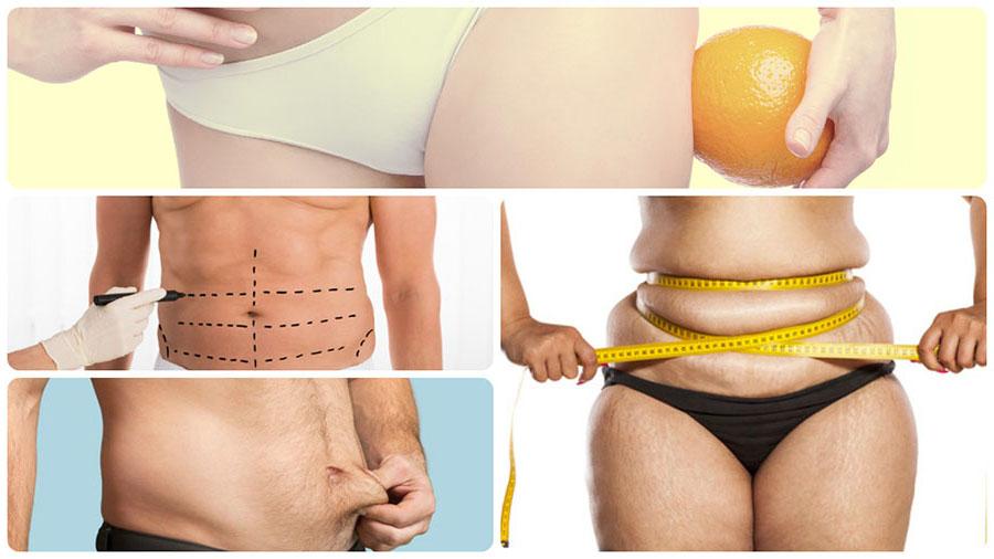 Los resultados de la liposucción no son inmediatos, sino que se van observando poco a poco.
