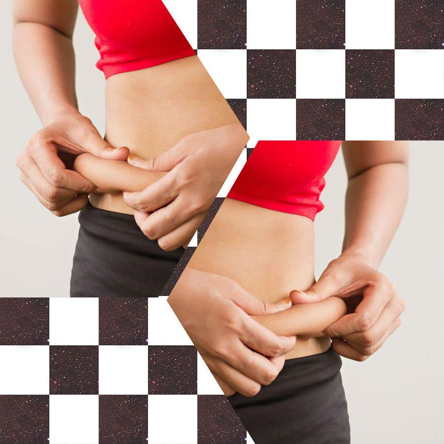 Con la liposucción en Santiago de Compostela se obtendrán unos magníficos resultados si el paciente cumple las recomendaciones de los especialistas.