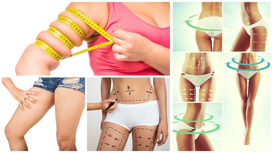 Para evitar recuperar la grasa extraída con la liposucción o lipoescultura en Tarragona, el paciente tiene que tener una dieta sana y hacer ejercicio.