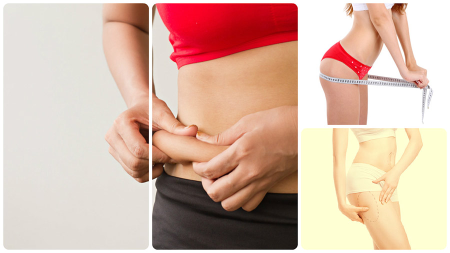 Eliminar los acúmulos de grasa localizada en diferentes partes del cuerpo es posible con una liposucción o lipoescultura en Huelva.