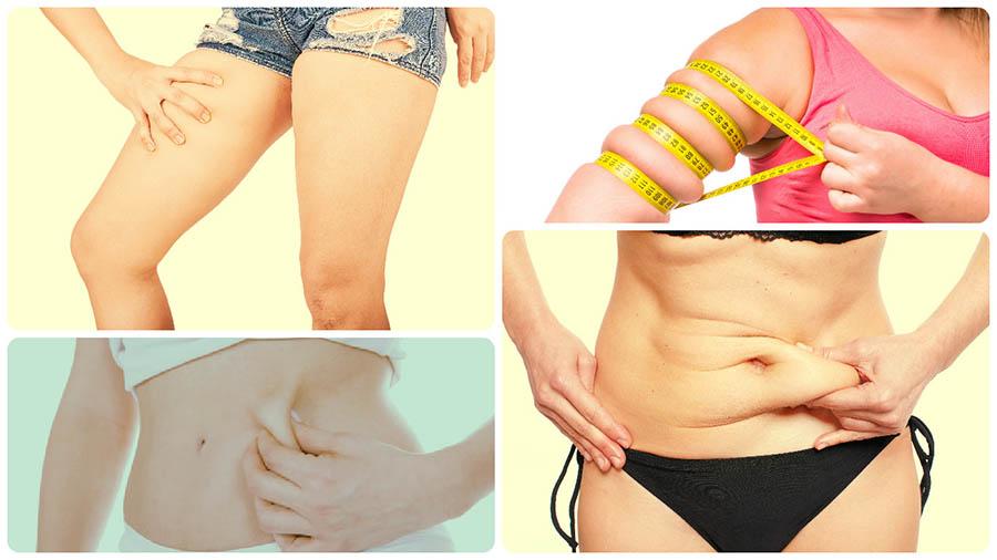 Algunas de las zonas donde se puede realizar una liposucción en Gijón son: muslos, brazos, caderas o abdomen.
