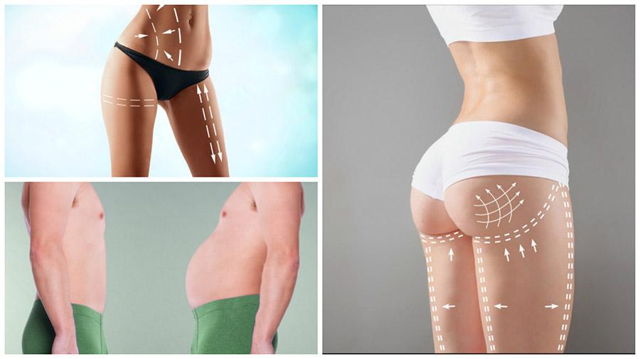 El postoperatorio de la liposucción en Tenerife puede ocasionar molestias leves, pero no tiene complicaciones mayores.
