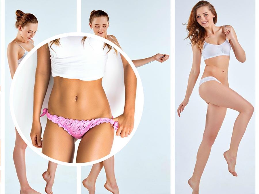 La intervención se lleva a cabo mediante pequeñas incisiones, a través de las cuales se aspira la grasa.