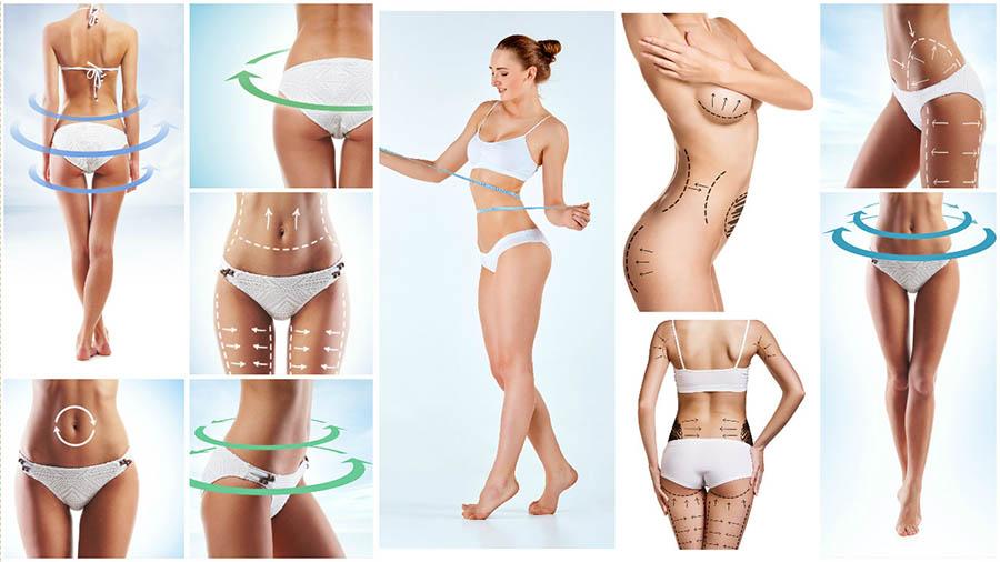 Son muchas las zonas del cuerpo en las que se puede realizar una liposucción o lipoescultura en Albacete.