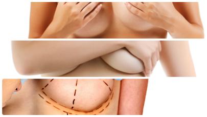 La recuperación tras una cirugía de estas características no es demasiado molesta si se siguen determinadas indicaciones.