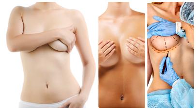 Si la mastopexia en Madrid se practica junto con una mamoplastia de aumento, se podrán utilizar prótesis o grasa.