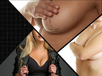 La posición de las mamas de la paciente puede corregirse con la realización de esta operación de mastopexia en Málaga.