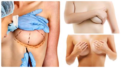Según la clase de elevación a la que se vaya a proceder, el cirujano practicará las incisiones en uno u otro lugar del seno.
