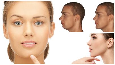 El rostro de aquellos pacientes que se sometan a esta cirugía, conseguirá alcanzar una mayor armonía en su conjunto.