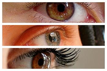 Una operación de miopía con láser ofrece múltiples ventajas que se recomienda conocer