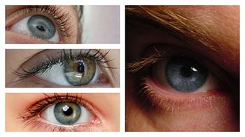Con la cirugía de miopía con láser se consigue que la córnea pueda enfocar claramente la imagen en la retina.