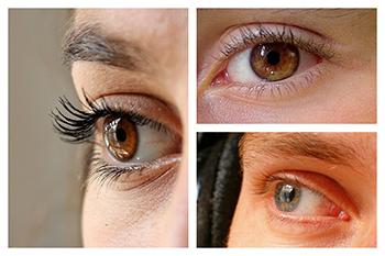 La técnica LASIK es la más utilizada para la cirugía de miopía en Barcelona.