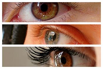 La cirugía de miopía con láser es una técnica rápida e indolora.