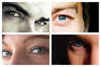 Los efectos secundarios de la operación de miopía son pocos, pero deben ser conocidos para evitar sorpresas.