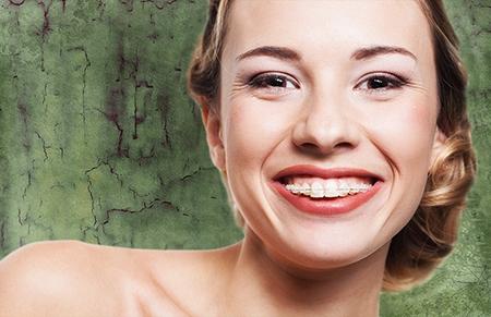 Todos los problemas de maloclusiones y malposiciones dentarias se pueden solucionar con una ortodoncia.
