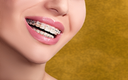 La principal diferencia entre la ortodoncia de niños y adultos es el cuidado por la estética.