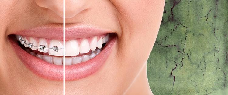 La ortodoncia en Badajoz es la responsable de diagnosticar y resolver problemas en la alineación de los dientes.