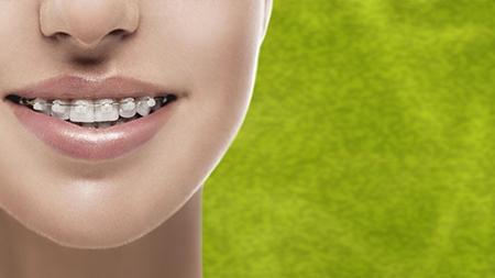 La ortodoncia estética o de zafiro utiliza brackets invisibles.