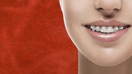 La ortodoncia estética o de zafiro está formada por brackets prácticamente imperceptibles.