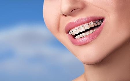 Los adultos prestan más atención al aspecto estético de la ortodoncia en Málaga.