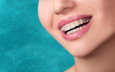 En el caso de los adultos, valoran más el cuidado de la estética de la ortodoncia en Sabadell