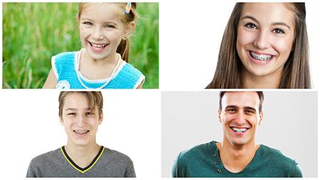 No hay edad mínima ni máxima para una ortodoncia en Barcelona